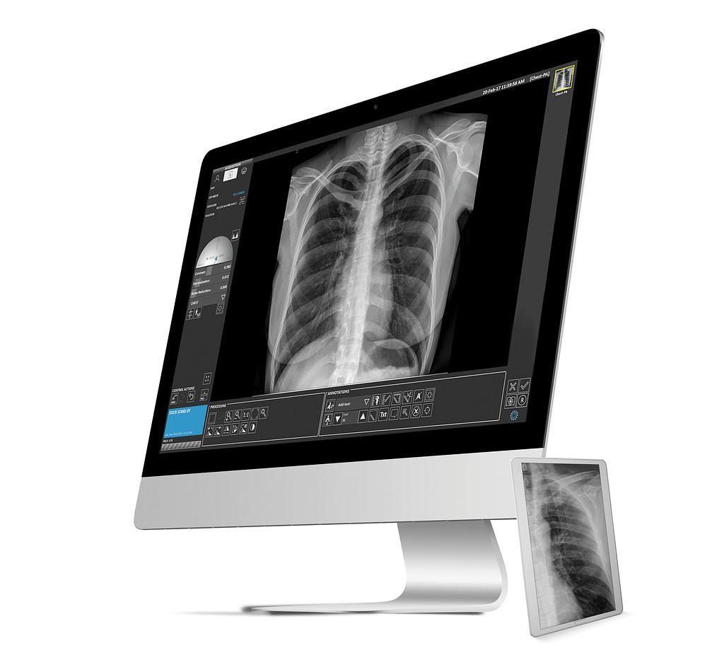 Avanse DR Image Software